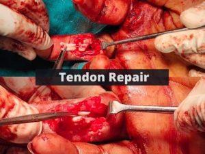 Tendon Repair